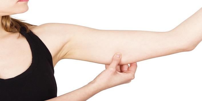 Loose Upper Arm