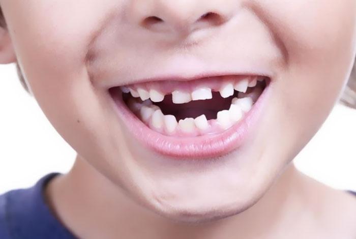 दांतों का उबड़ खाबड़ होना