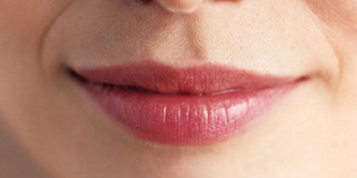 होंठों के धब्बे को दूर करें